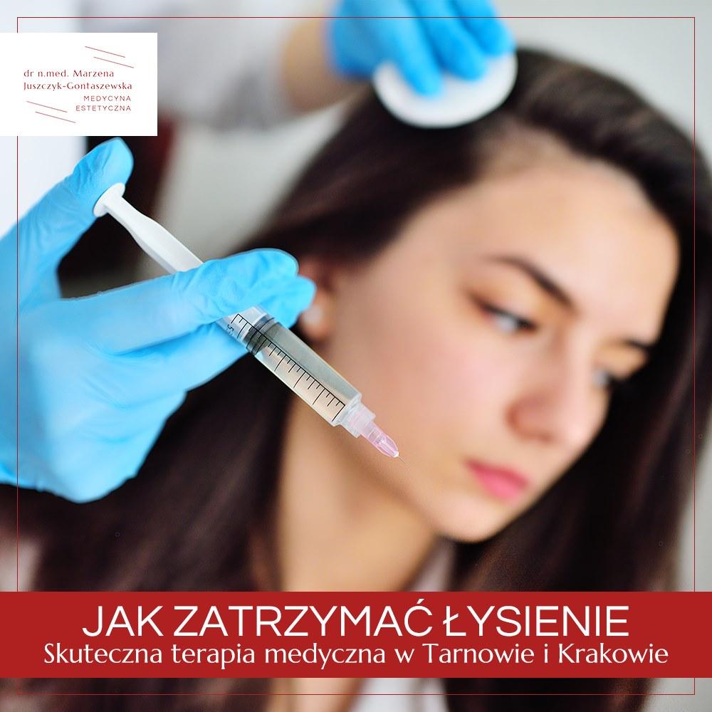 łysienie, dr Marzena Juszczyk-Gontaszewska